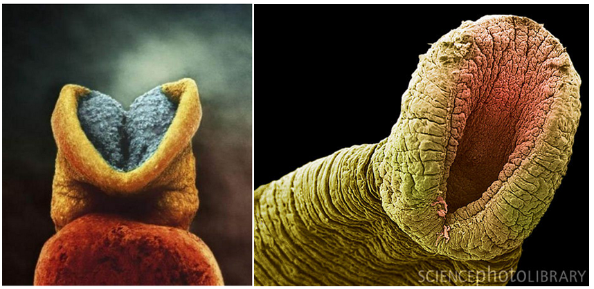 Does this photo of an embryo resemble a leech?