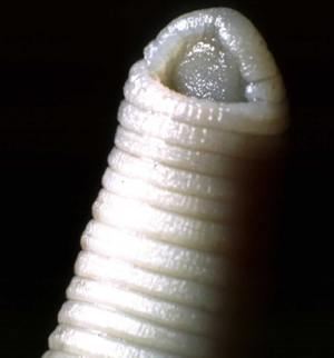 Leech head showing sucker