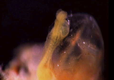 Photograph of a human embryo during the fourth week with visible body segmentation. (The Human Body. The Incredible Journey from Birth to Death, © BBC Worldwide Ltd, 1998) .